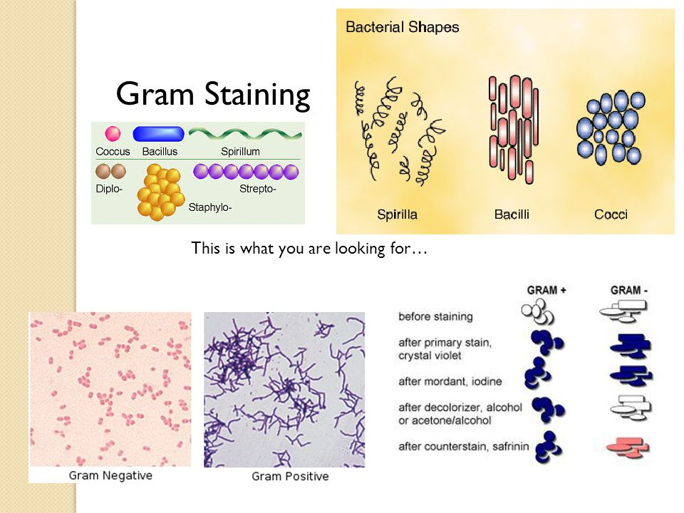 This is what you are looking for… Gram Staining