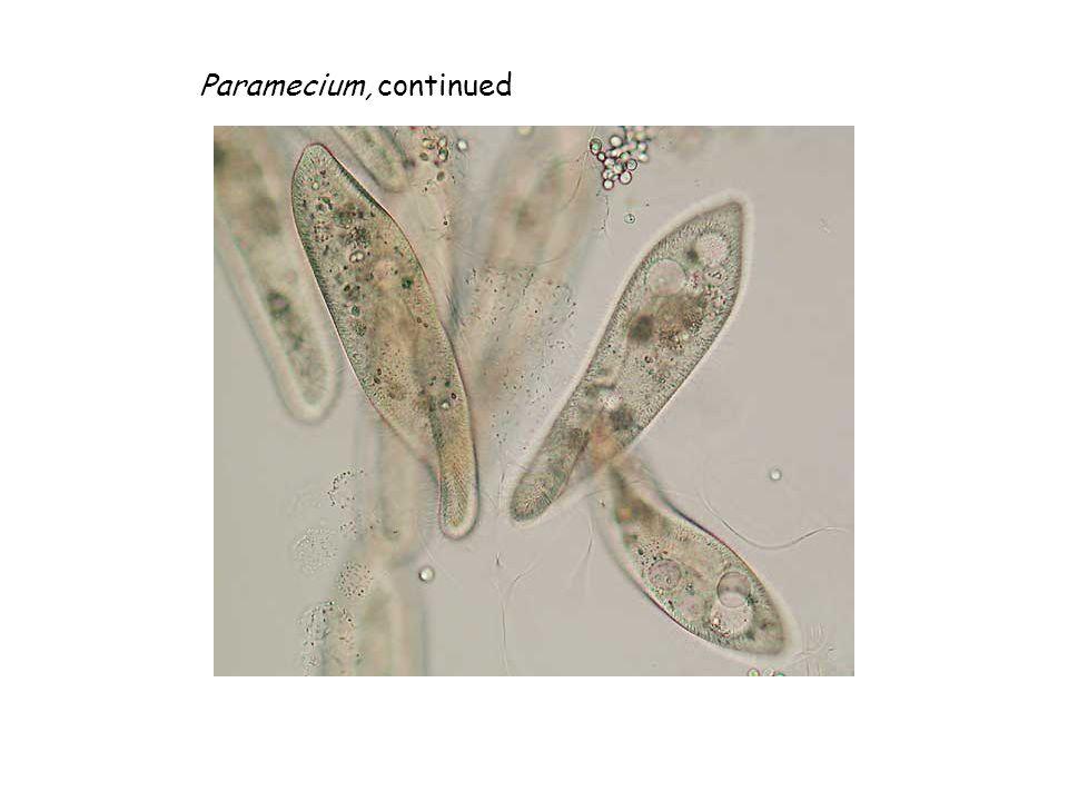 Wet Mount 4. Euglena gracilis A
