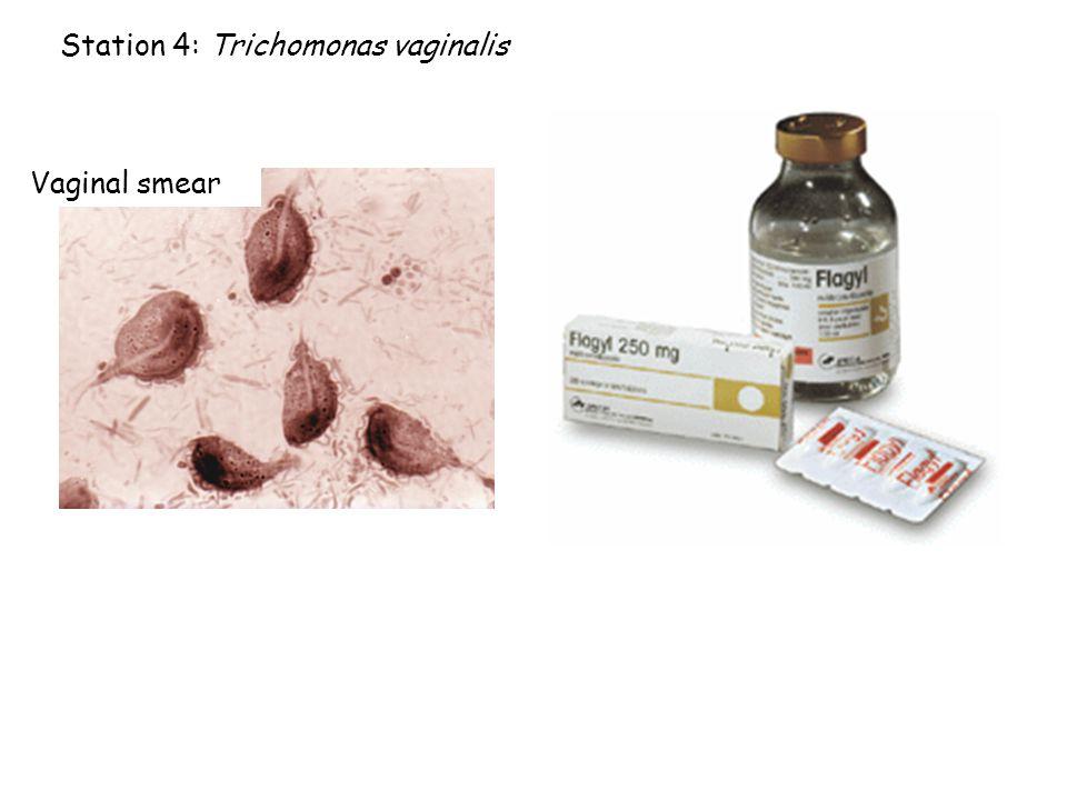 Station 5.Paramecium caudatum a. Method of reproduction.