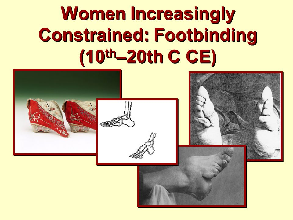 Women Increasingly Constrained: Footbinding (10 th –20th C CE)