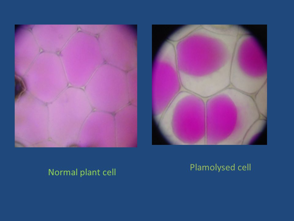 Plamolysed cell Normal plant cell