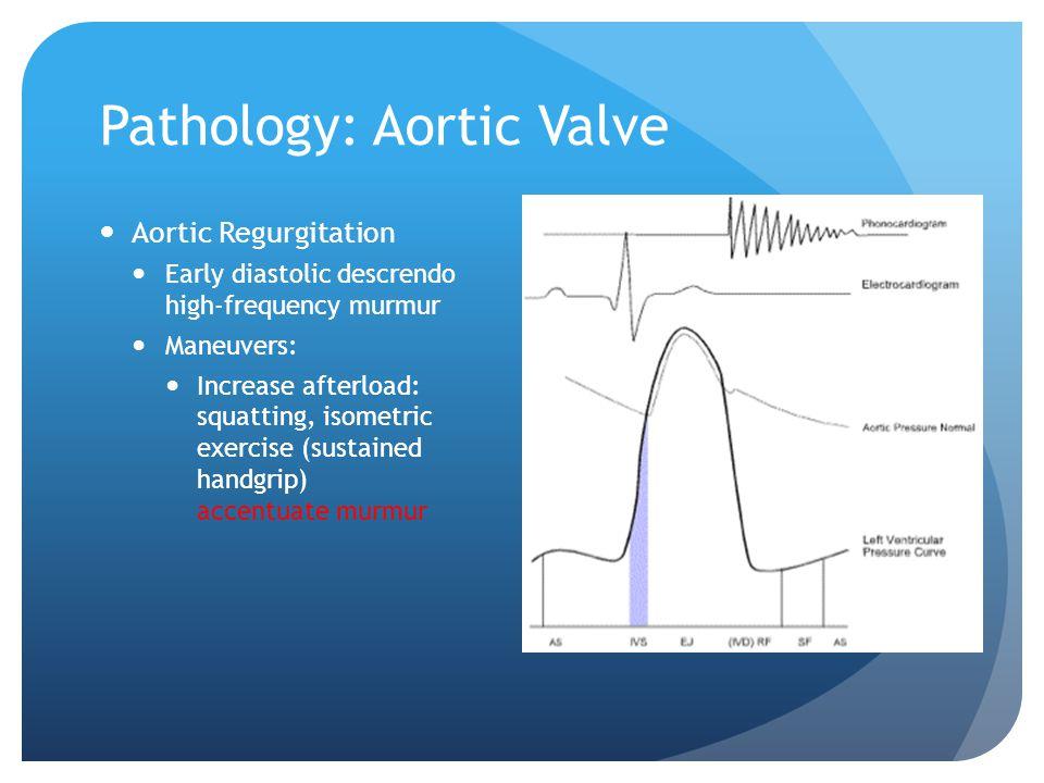 Pathology: Aortic Valve Aortic Regurgitation Early diastolic descrendo high-frequency murmur Maneuvers: Increase afterload: squatting, isometric exerc