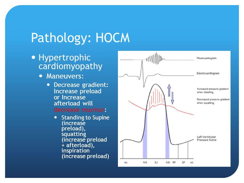 Pathology: HOCM Hypertrophic cardiomyopathy Maneuvers: Decrease gradient: Increase preload or Increase afterload will decrease murmur: Standing to Sup