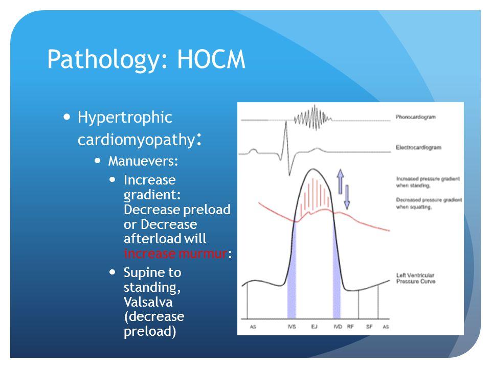 Pathology: HOCM Hypertrophic cardiomyopathy : Manuevers: Increase gradient: Decrease preload or Decrease afterload will increase murmur: Supine to sta