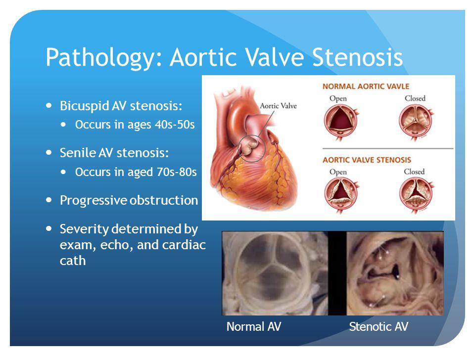 Pathology: Aortic Valve Stenosis Bicuspid AV stenosis: Occurs in ages 40s-50s Senile AV stenosis: Occurs in aged 70s-80s Progressive obstruction Sever