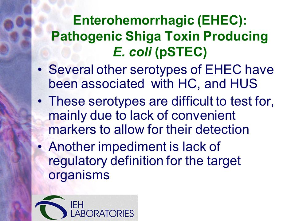 Enterohemorrhagic (EHEC): Pathogenic Shiga Toxin Producing E.