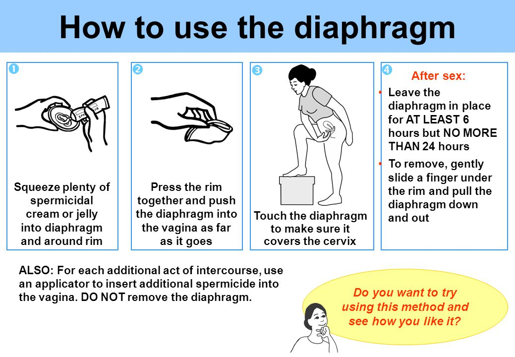 Touch the diaphragm to make sure it covers the cervix Squeeze plenty of spermicidal cream or jelly into diaphragm and around rim Use about a tablespoon of jelly or cream.