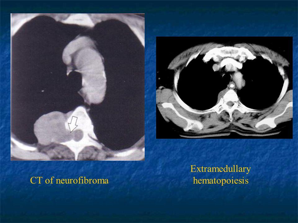 CT of neurofibroma Extramedullary hematopoiesis