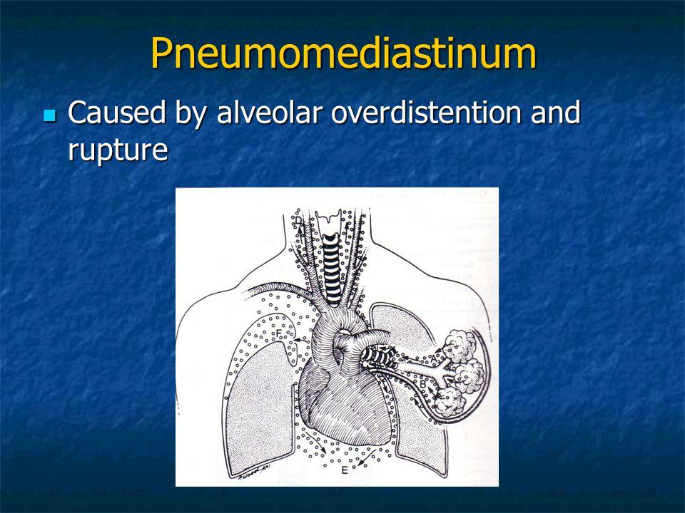 Pneumomediastinum Caused by alveolar overdistention and rupture Caused by alveolar overdistention and rupture