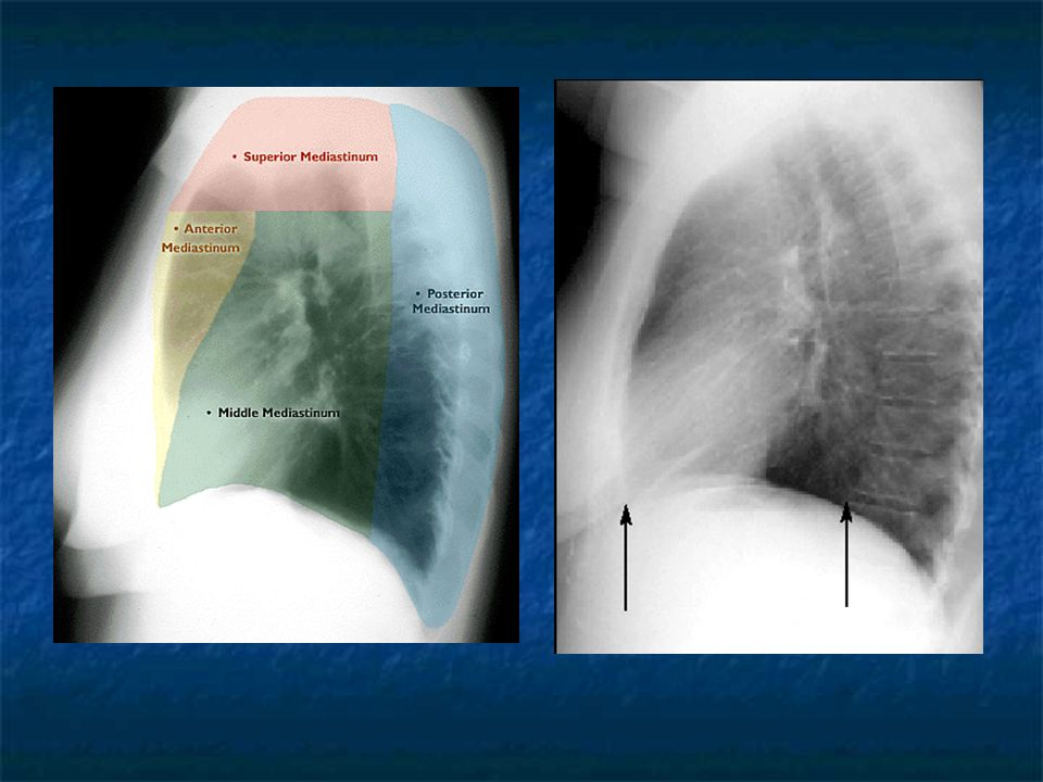 Physical examination reveals palpable subcutaneous emphysema in the neck Physical examination reveals palpable subcutaneous emphysema in the neck On auscultation of the chest a clicking sound over the pericardium synchronous with the heartbeat (Hamman's sign) On auscultation of the chest a clicking sound over the pericardium synchronous with the heartbeat (Hamman's sign)