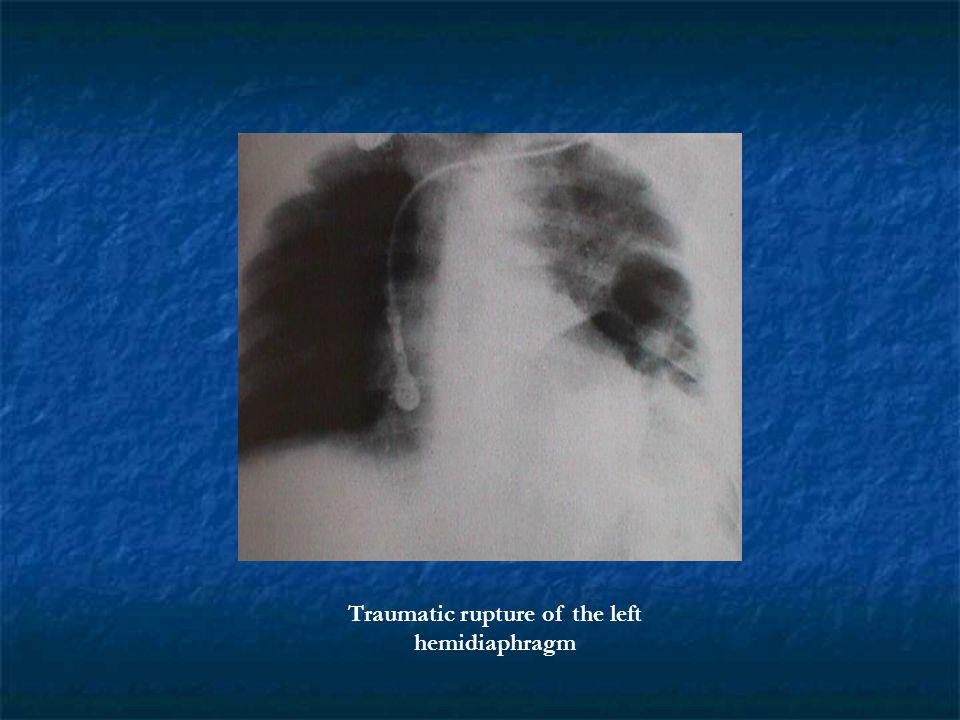 Traumatic rupture of the left hemidiaphragm