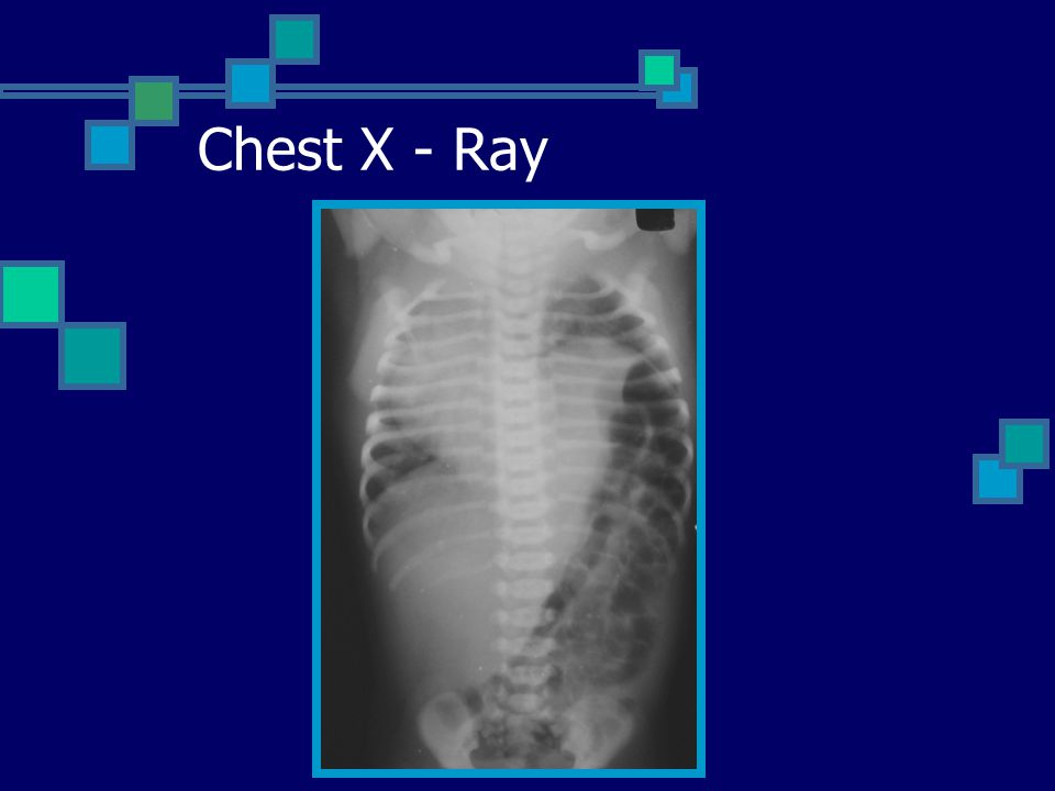 Chest X - Ray