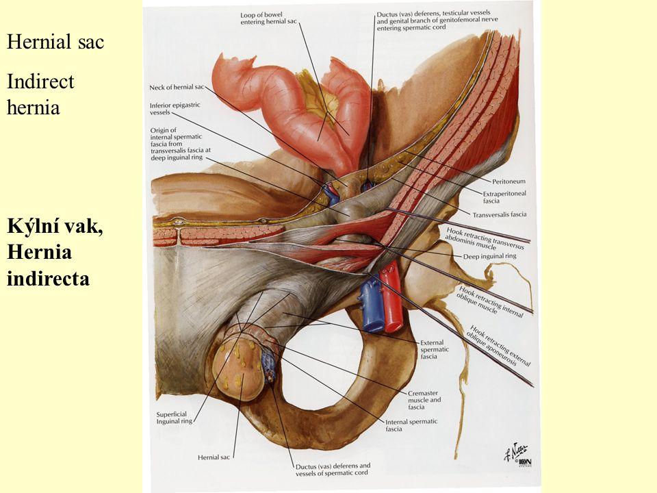Hernial sac Indirect hernia Kýlní vak, Hernia indirecta