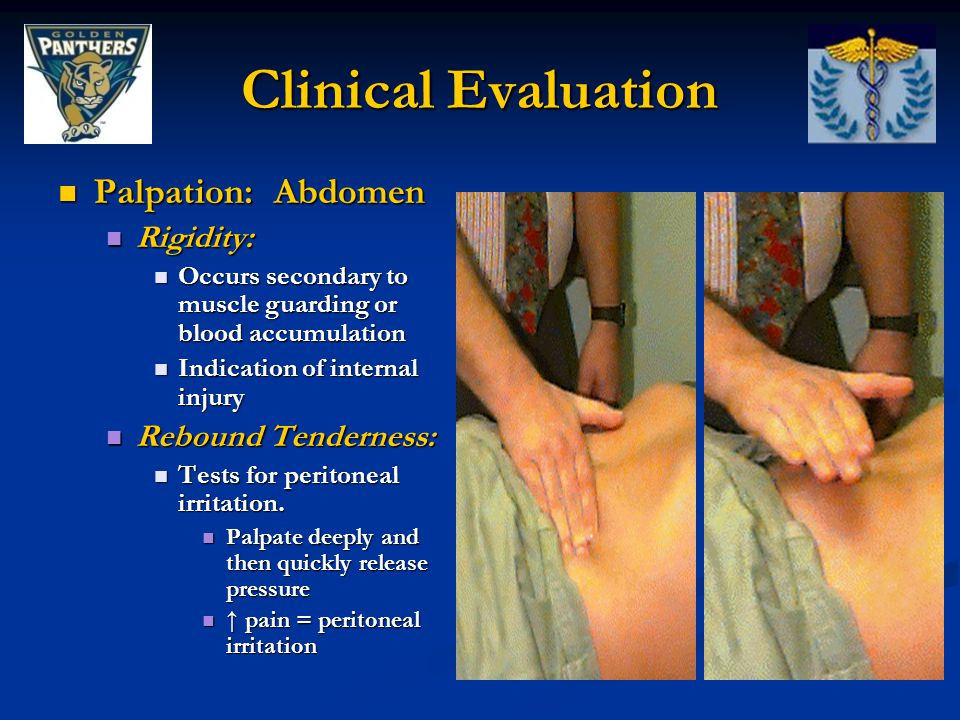 Clinical Evaluation Palpation: Abdomen Palpation: Abdomen Rigidity: Rigidity: Occurs secondary to muscle guarding or blood accumulation Occurs seconda