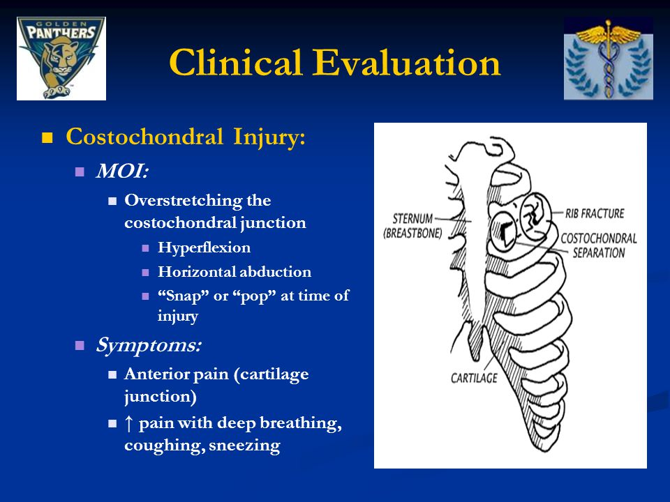 Clinical Evaluation Costochondral Injury: MOI: Overstretching the costochondral junction Hyperflexion Horizontal abduction Snap or pop at time of injury Symptoms: Anterior pain (cartilage junction) ↑ pain with deep breathing, coughing, sneezing