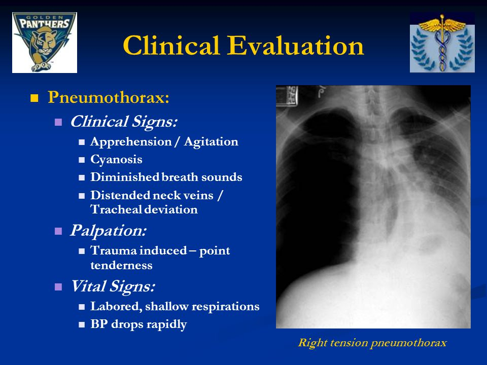 Clinical Evaluation Pneumothorax: Clinical Signs: Apprehension / Agitation Cyanosis Diminished breath sounds Distended neck veins / Tracheal deviation Palpation: Trauma induced – point tenderness Vital Signs: Labored, shallow respirations BP drops rapidly Right tension pneumothorax