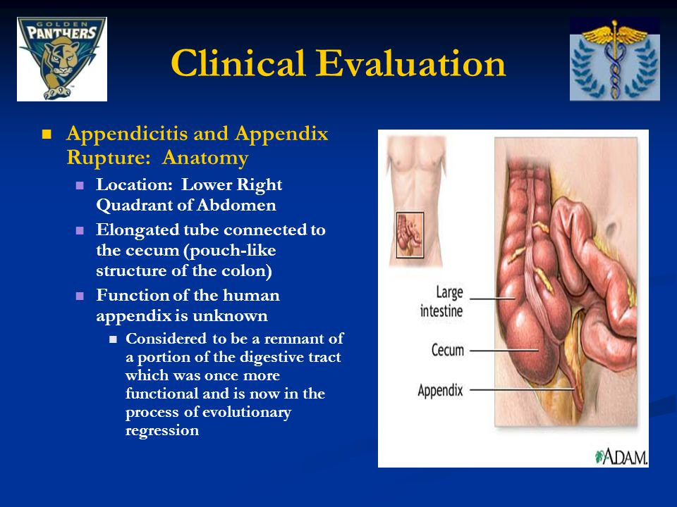 Clinical Evaluation Appendicitis and Appendix Rupture: Anatomy Location: Lower Right Quadrant of Abdomen Elongated tube connected to the cecum (pouch-like structure of the colon) Function of the human appendix is unknown Considered to be a remnant of a portion of the digestive tract which was once more functional and is now in the process of evolutionary regression