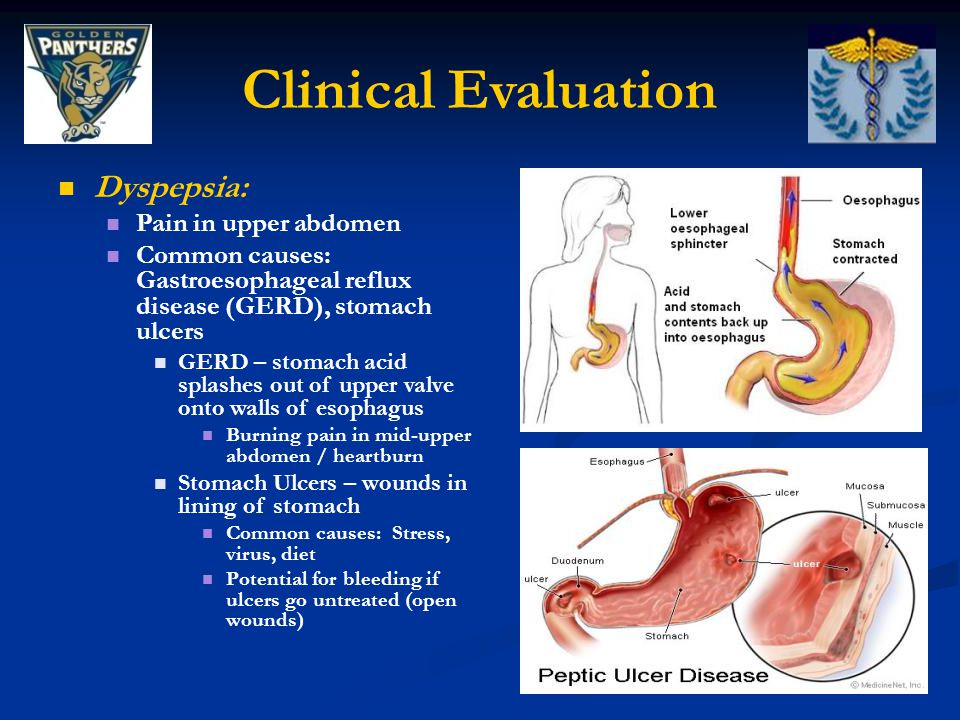 Clinical Evaluation Dyspepsia: Pain in upper abdomen Common causes: Gastroesophageal reflux disease (GERD), stomach ulcers GERD – stomach acid splashes out of upper valve onto walls of esophagus Burning pain in mid-upper abdomen / heartburn Stomach Ulcers – wounds in lining of stomach Common causes: Stress, virus, diet Potential for bleeding if ulcers go untreated (open wounds)