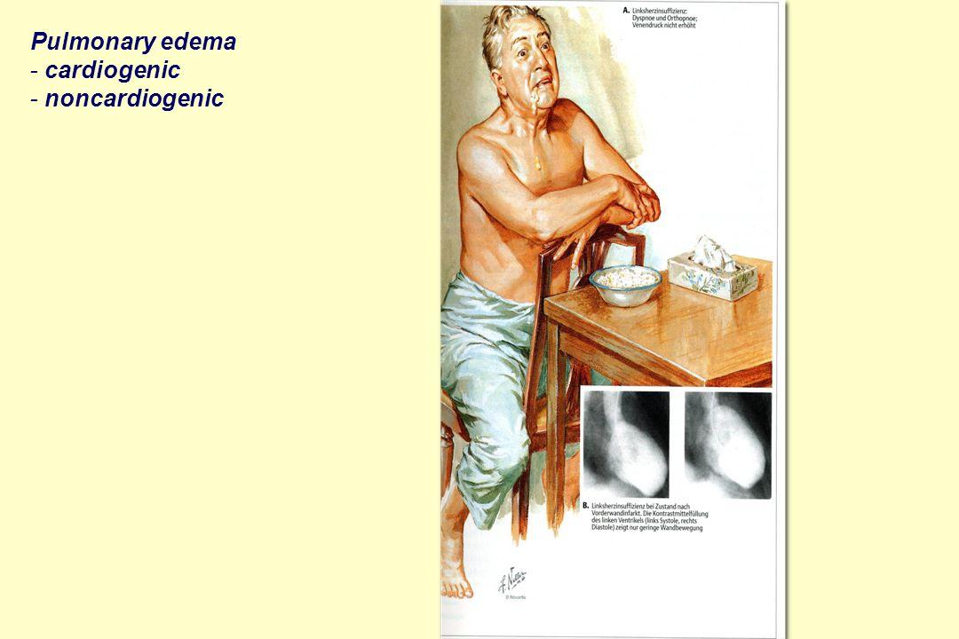 Pulmonary edema - cardiogenic - noncardiogenic