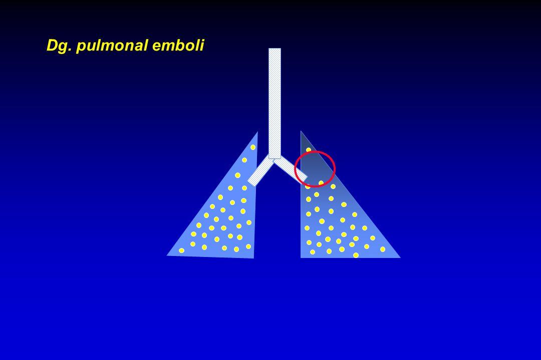 Dg. pulmonal emboli