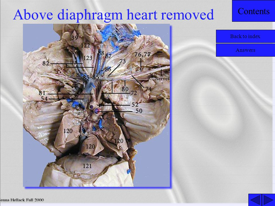 Contents Above diaphragm heart removed Back to index Answers