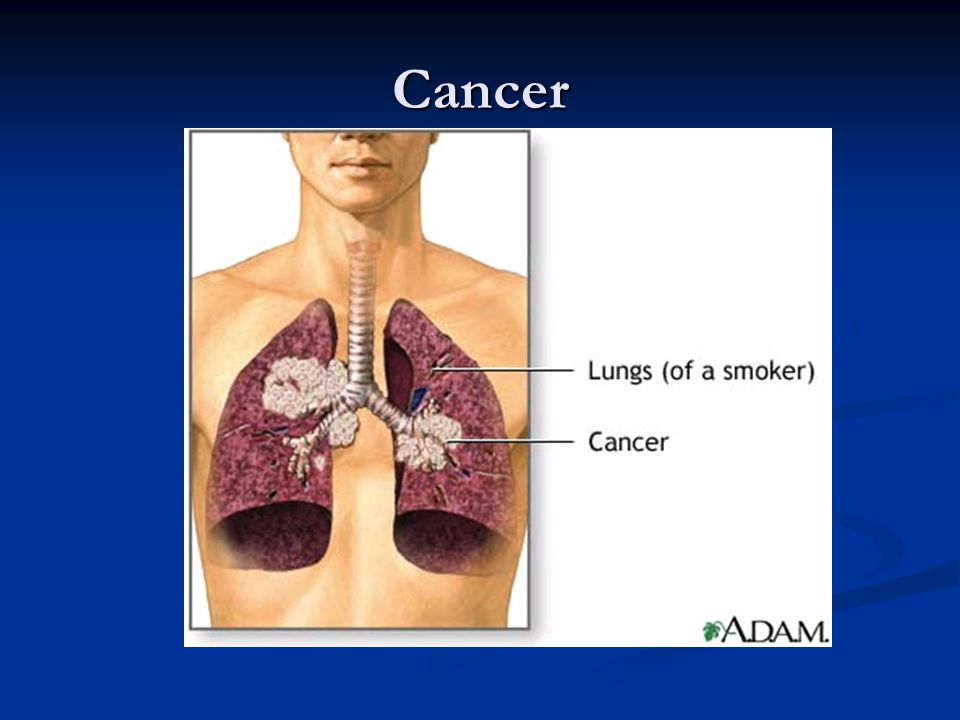 Smoking Lung of non smoker on left and lung of smoker on the right