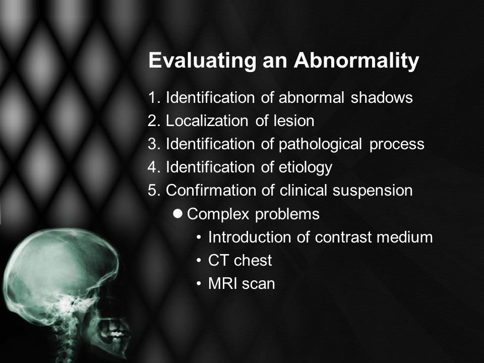 Evaluating an Abnormality 1. Identification of abnormal shadows 2.Localization of lesion 3.Identification of pathological process 4.Identification of
