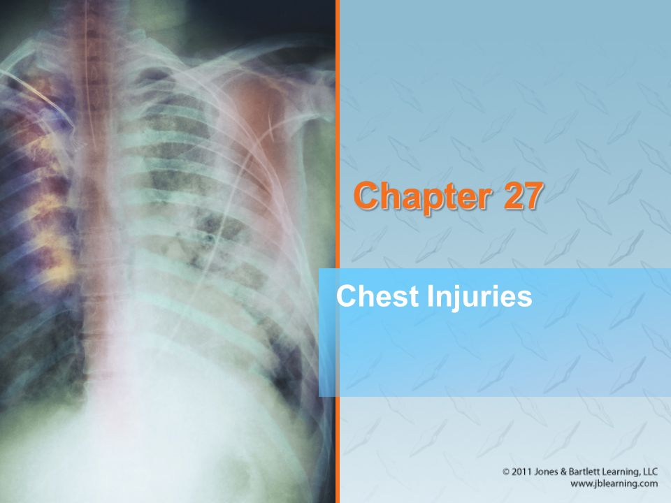 Other Chest Injuries (4 of 8) Traumatic asphyxia (cont'd) –Suggests an underlying injury to the heart and possibly a pulmonary contusion –Prehospital treatment: Ventilatory support and supplemental oxygen Monitor vital signs during immediate transport.