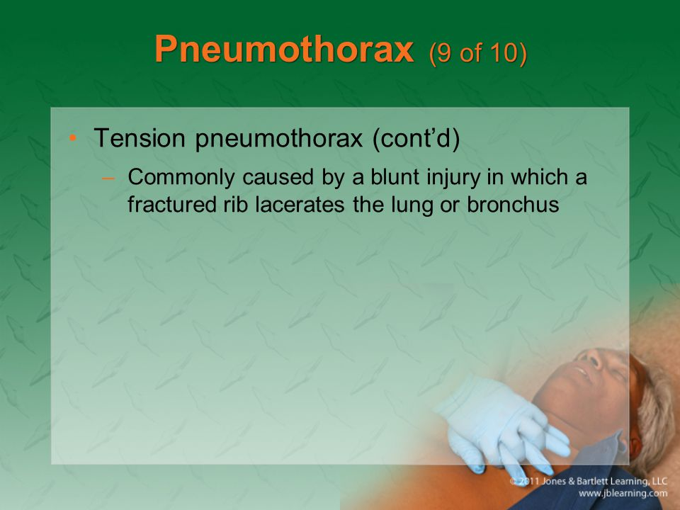 Pneumothorax (9 of 10) Tension pneumothorax (cont'd) –Commonly caused by a blunt injury in which a fractured rib lacerates the lung or bronchus