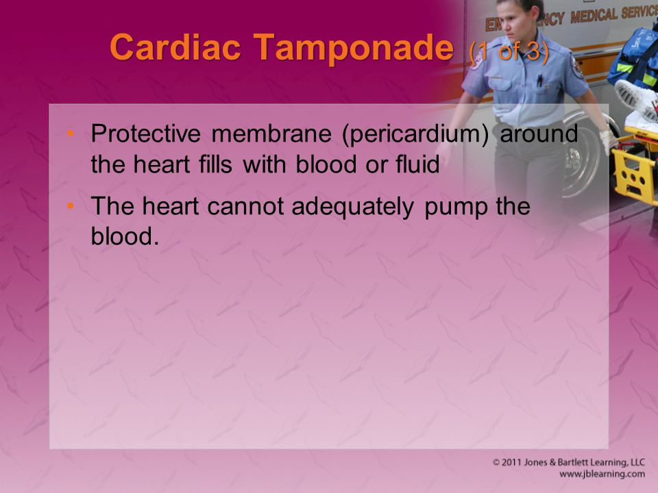 Cardiac Tamponade (1 of 3) Protective membrane (pericardium) around the heart fills with blood or fluid The heart cannot adequately pump the blood.