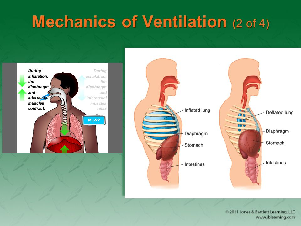 Mechanics of Ventilation (3 of 4) Patients with a spinal injury below C5 can still breathe from the diaphragm.