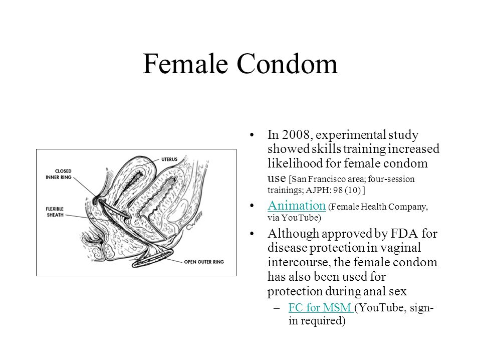 Female Condom In 2008, experimental study showed skills training increased likelihood for female condom use [San Francisco area; four-session trainings; AJPH: 98 (10) ] Animation (Female Health Company, via YouTube)Animation Although approved by FDA for disease protection in vaginal intercourse, the female condom has also been used for protection during anal sex –FC for MSM (YouTube, sign- in required)FC for MSM