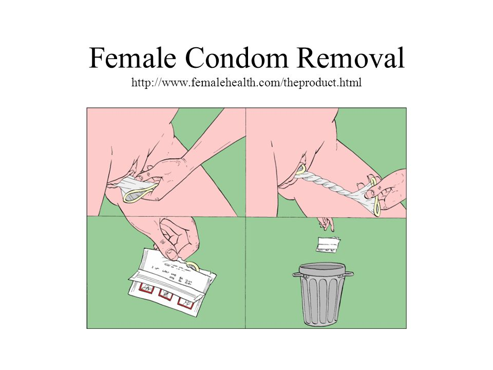 Female Condom Removal http://www.femalehealth.com/theproduct.html
