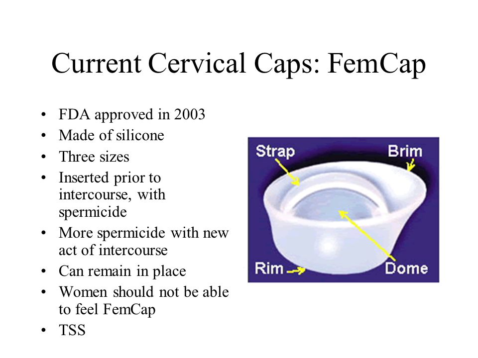 Current Cervical Caps: FemCap FDA approved in 2003 Made of silicone Three sizes Inserted prior to intercourse, with spermicide More spermicide with new act of intercourse Can remain in place Women should not be able to feel FemCap TSS