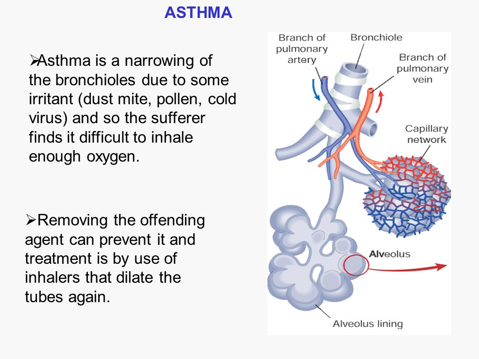  Asthma is a narrowing of the bronchioles due to some irritant (dust mite, pollen, cold virus) and so the sufferer finds it difficult to inhale enoug