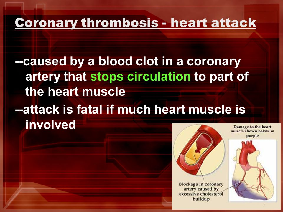 Coronary thrombosis - heart attack --caused by a blood clot in a coronary artery that stops circulation to part of the heart muscle --attack is fatal if much heart muscle is involved