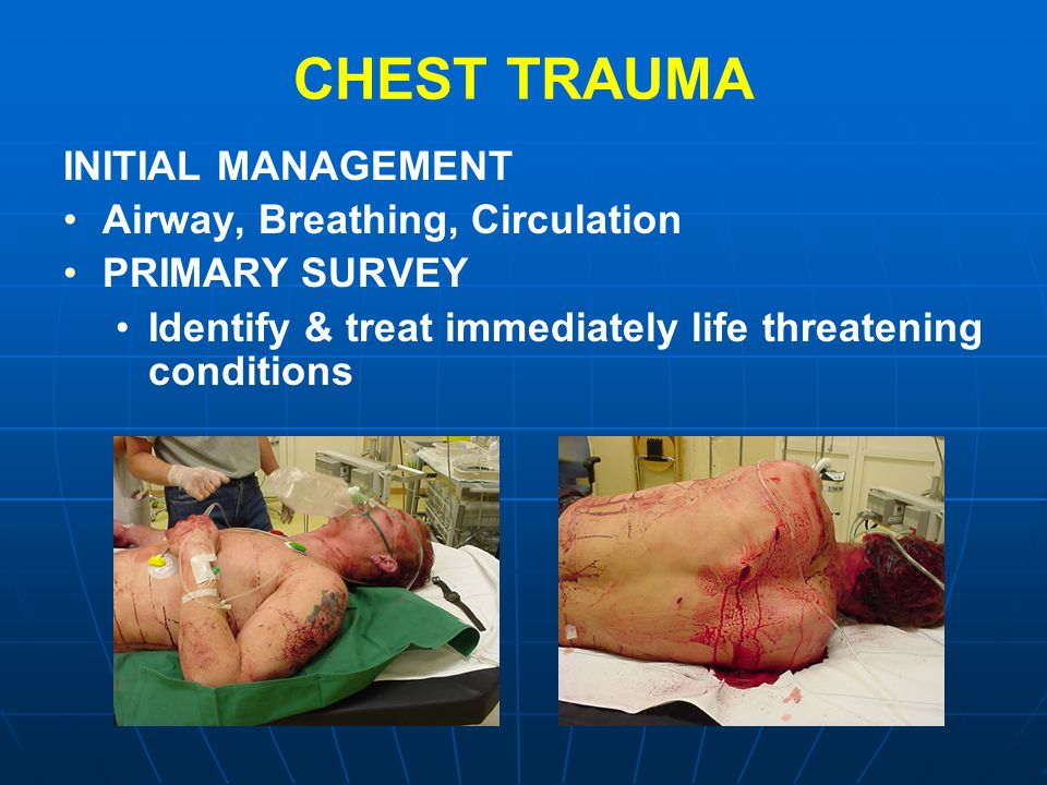 CHEST TRAUMA INITIAL MANAGEMENT Airway, Breathing, Circulation PRIMARY SURVEY Identify & treat immediately life threatening conditions