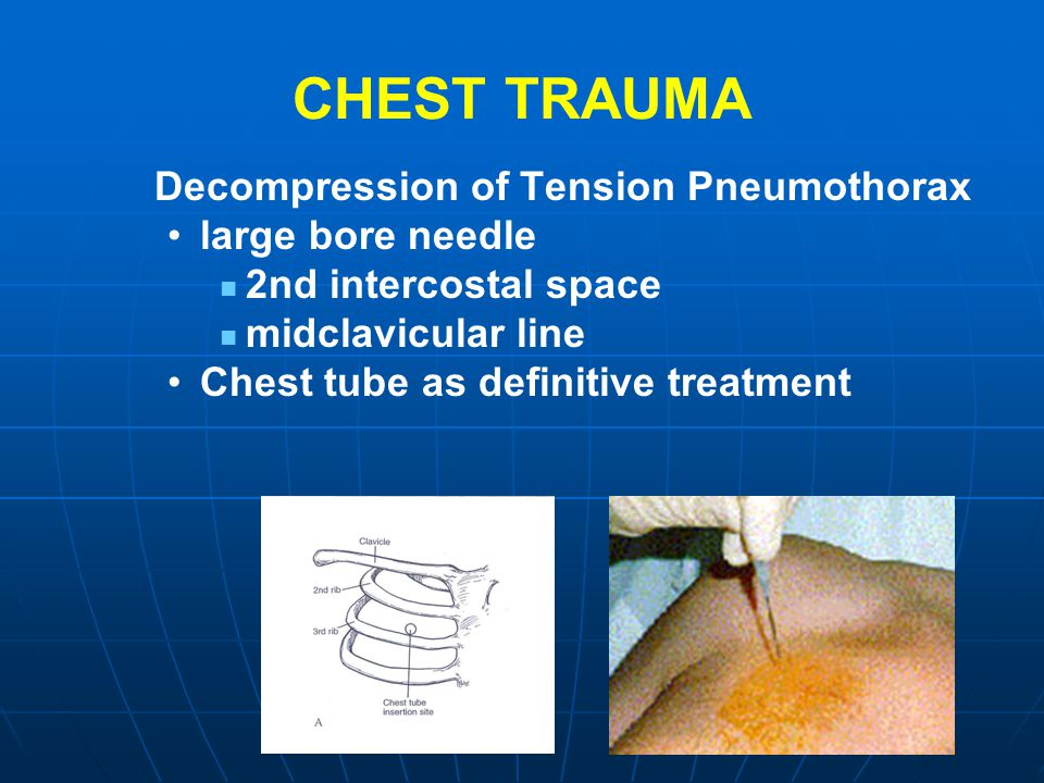 CHEST TRAUMA Decompression of Tension Pneumothorax large bore needle 2nd intercostal space midclavicular line Chest tube as definitive treatment