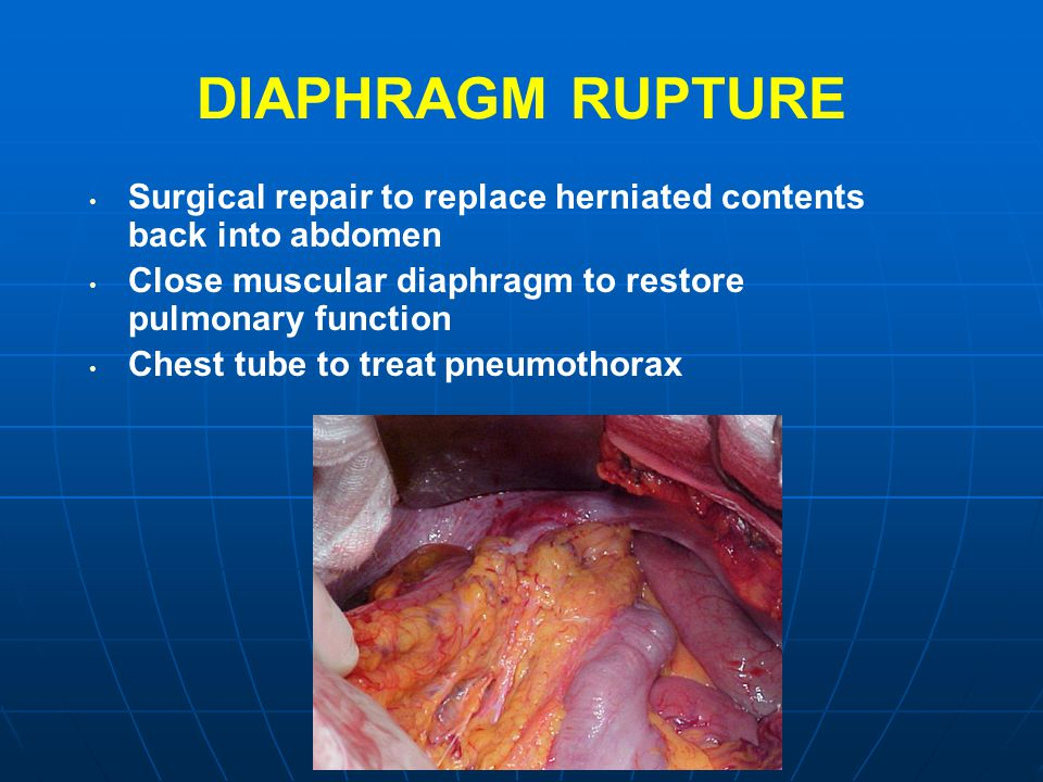DIAPHRAGM RUPTURE Surgical repair to replace herniated contents back into abdomen Close muscular diaphragm to restore pulmonary function Chest tube to