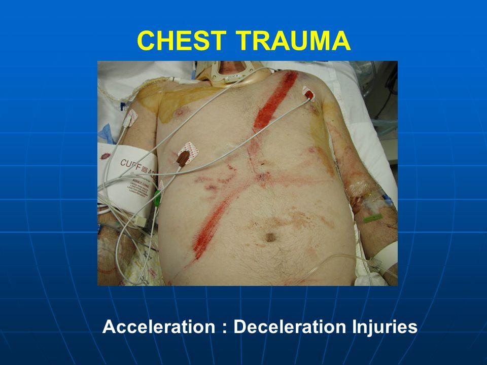 CHEST TRAUMA Acceleration : Deceleration Injuries