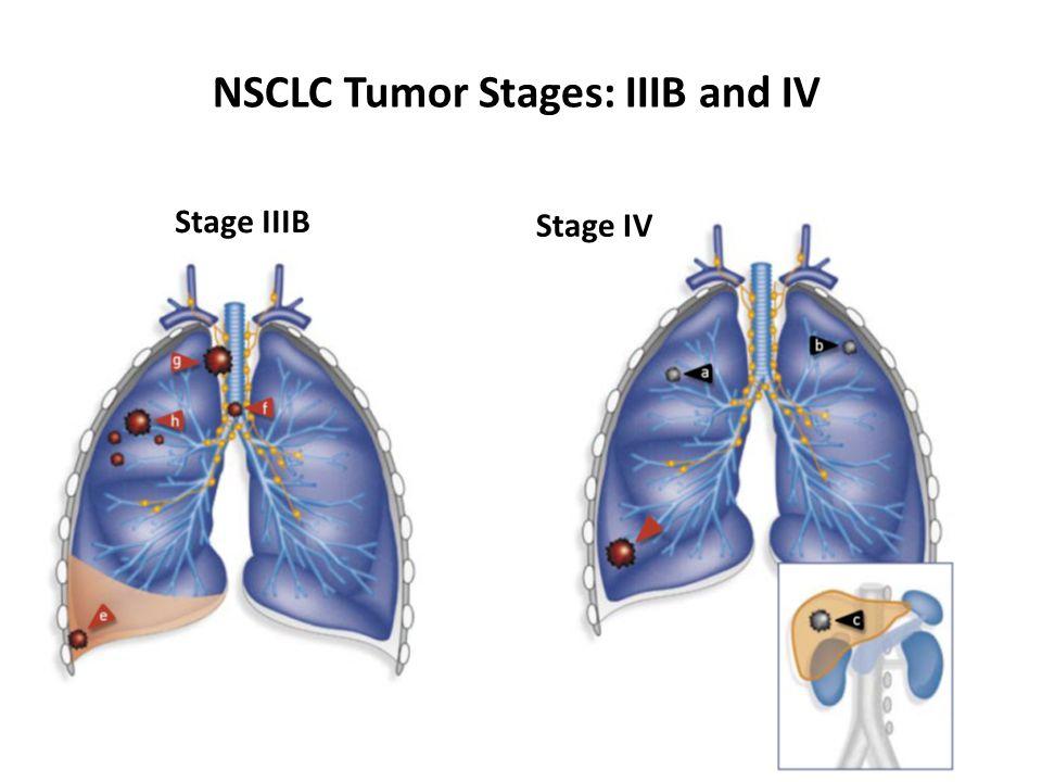 ERBITUX NSCLC Tumor Stages: IIIB and IV Stage IIIB Stage IV