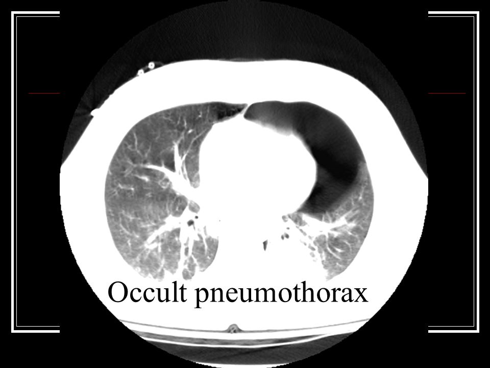 Occult pneumothorax