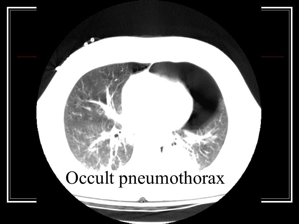 Occult pneumothorax