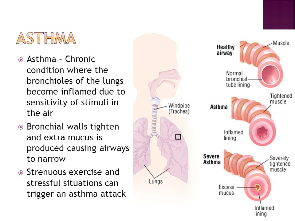  Asthma – Chronic condition where the bronchioles of the lungs become inflamed due to sensitivity of stimuli in the air  Bronchial walls tighten and