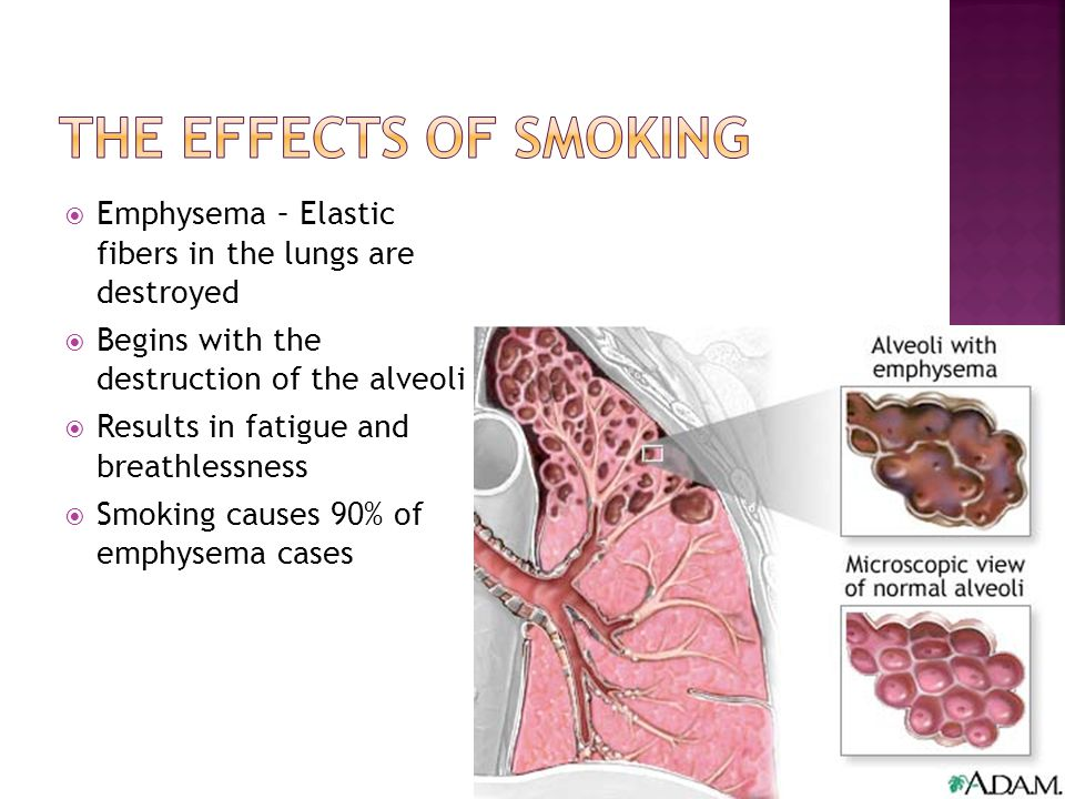  Emphysema – Elastic fibers in the lungs are destroyed  Begins with the destruction of the alveoli  Results in fatigue and breathlessness  Smoking