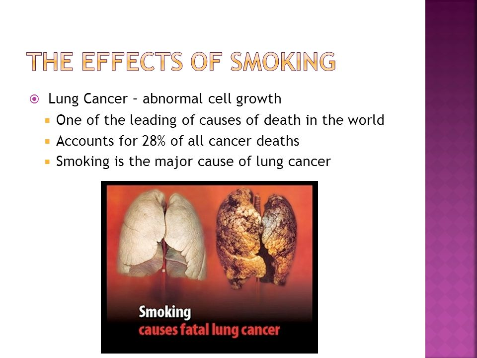  Lung Cancer – abnormal cell growth  One of the leading of causes of death in the world  Accounts for 28% of all cancer deaths  Smoking is the maj