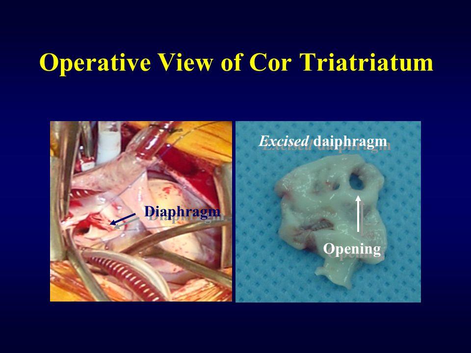 Operative View of Cor Triatriatum Diaphragm Excised daiphragm Opening