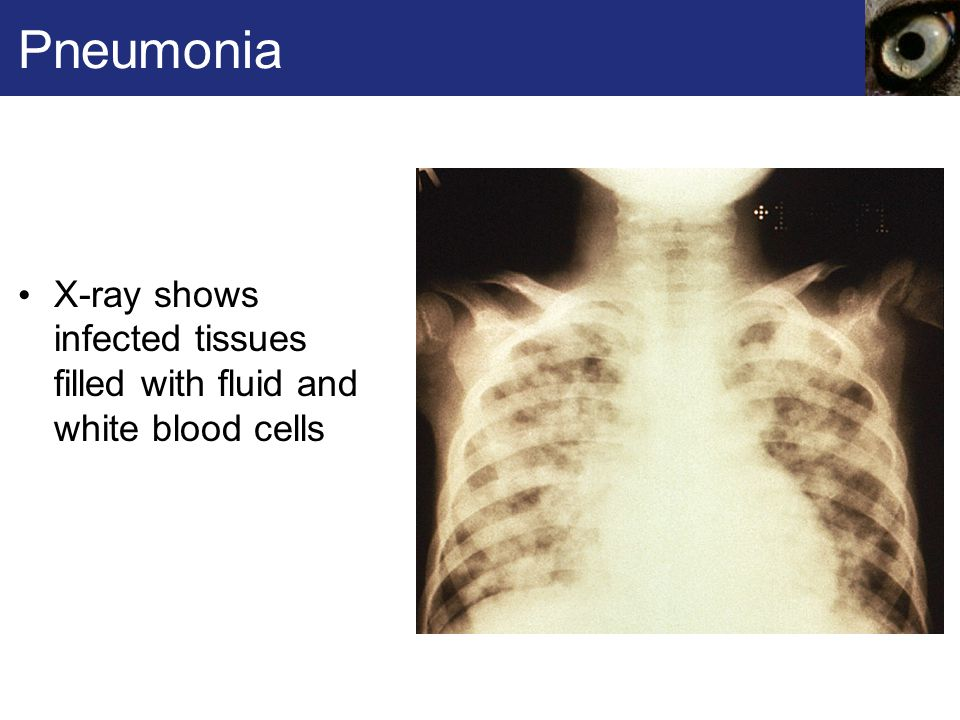 Pneumonia X-ray shows infected tissues filled with fluid and white blood cells