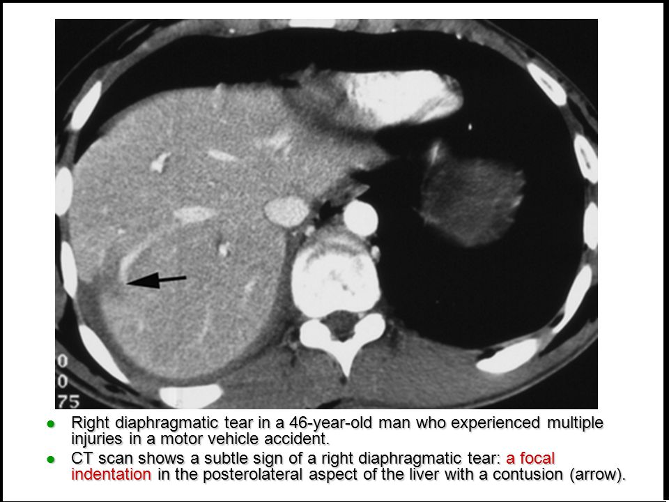 Right diaphragmatic tear in a 46-year-old man who experienced multiple injuries in a motor vehicle accident.