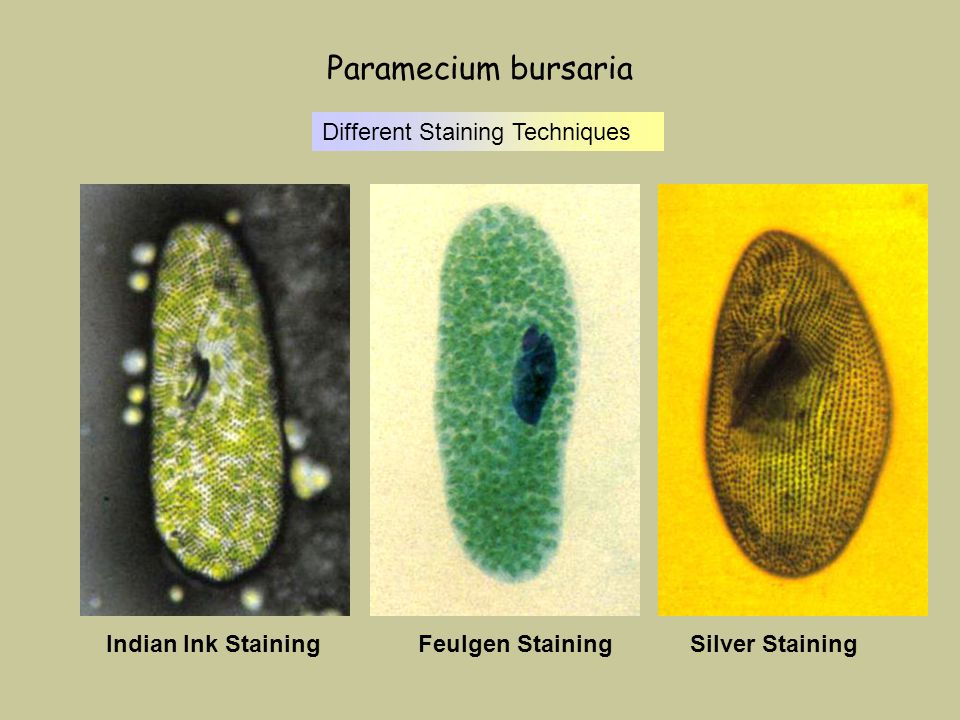 Paramecium bursaria Indian Ink StainingFeulgen StainingSilver Staining Different Staining Techniques